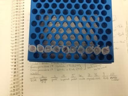 acrylamide protein gel electrophoresis